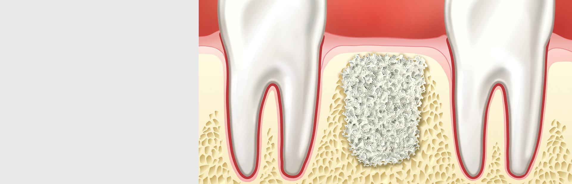 Направленная костная регенерация