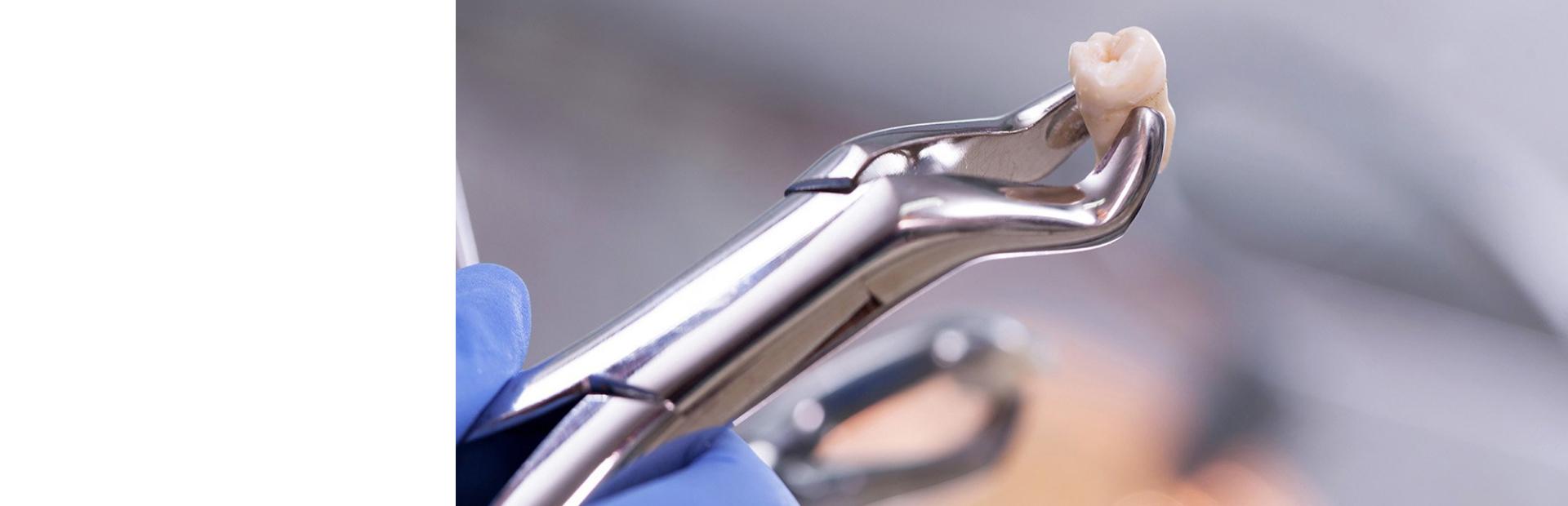 Удаление зубов у подростков