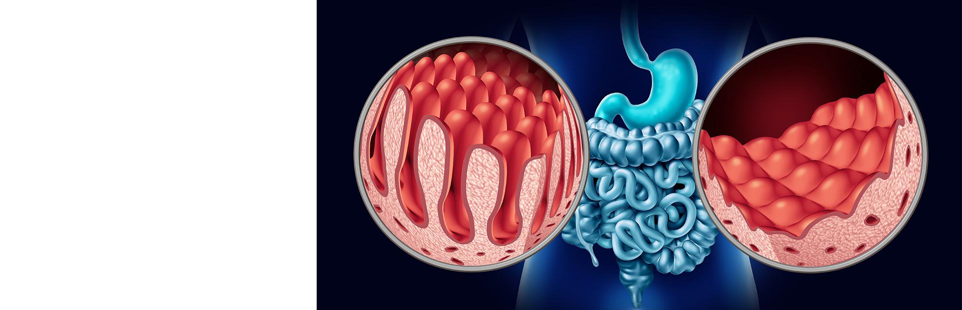 Аутоиммунные поражения желудочно-кишечного тракта. Целиакия