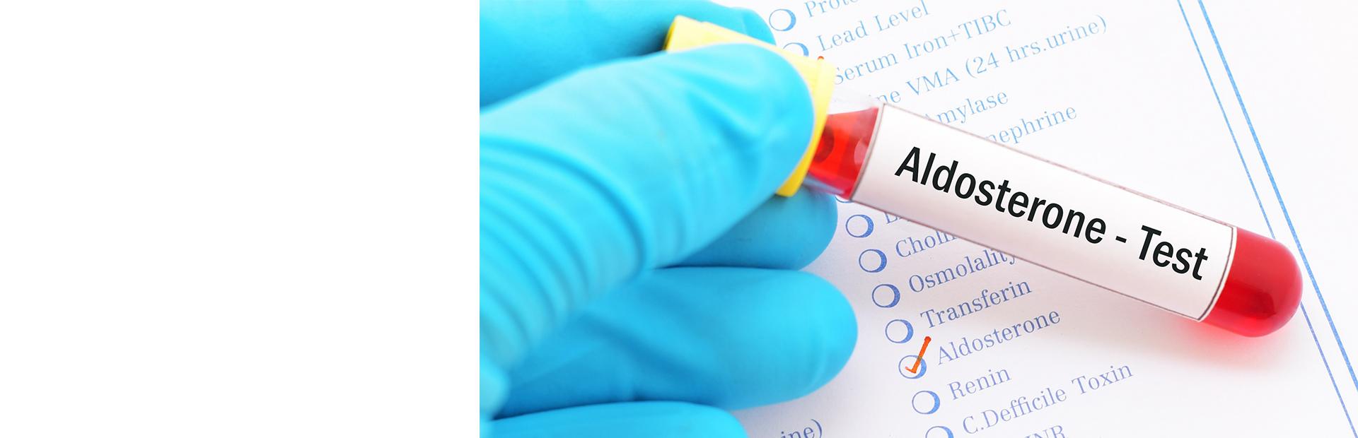 Оценка состояния ренин-ангиотензин-альдостероновой системы