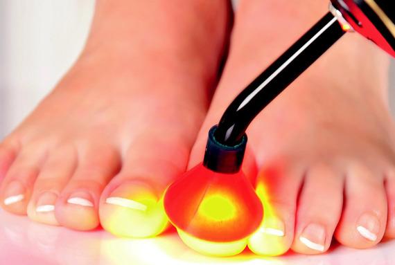Антигрибковая фотодинамическая терапия PACT
