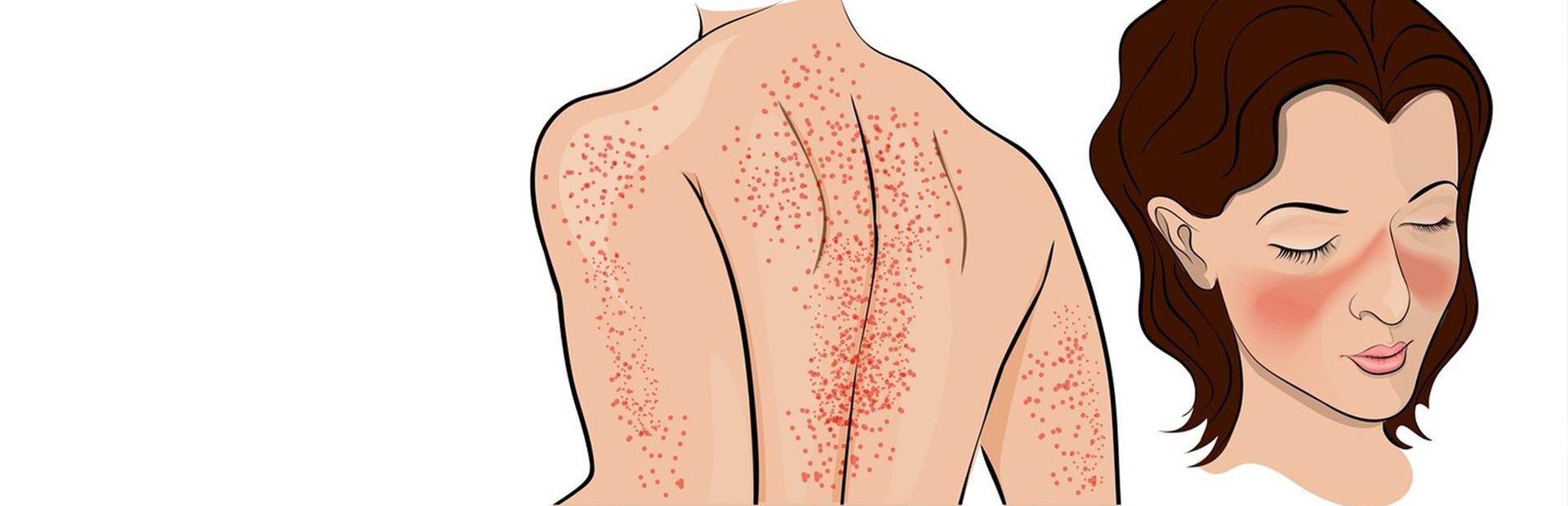 Аутоиммунные заболевания кожи