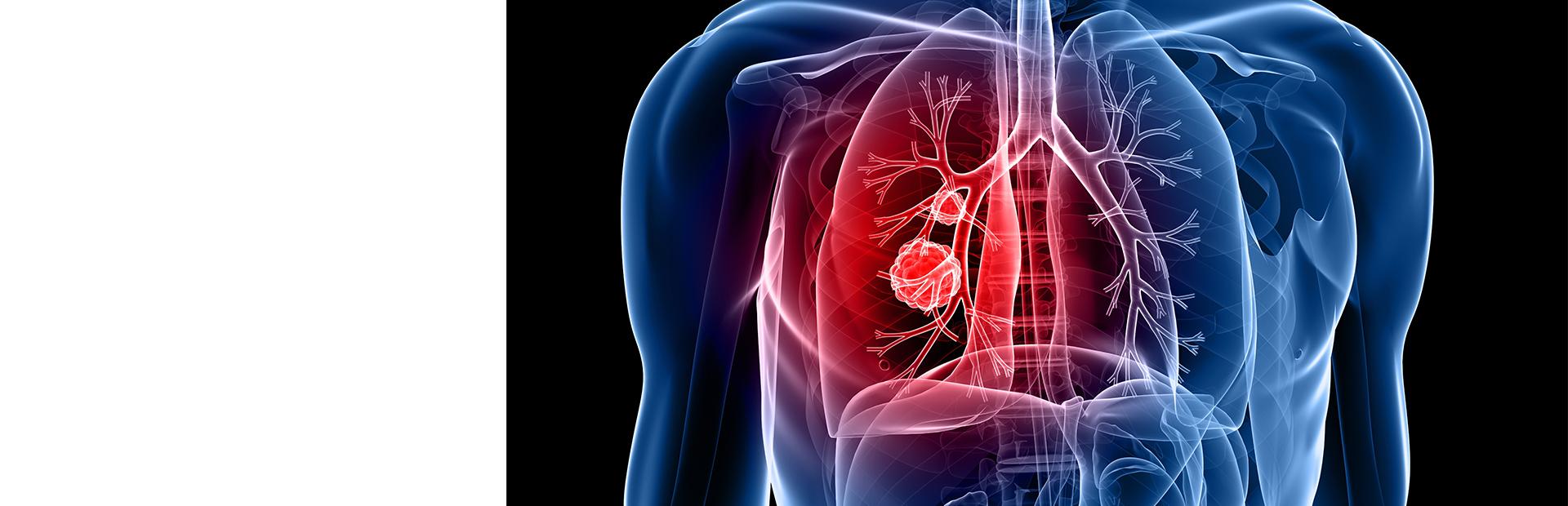 Заболевания легких и сердца
