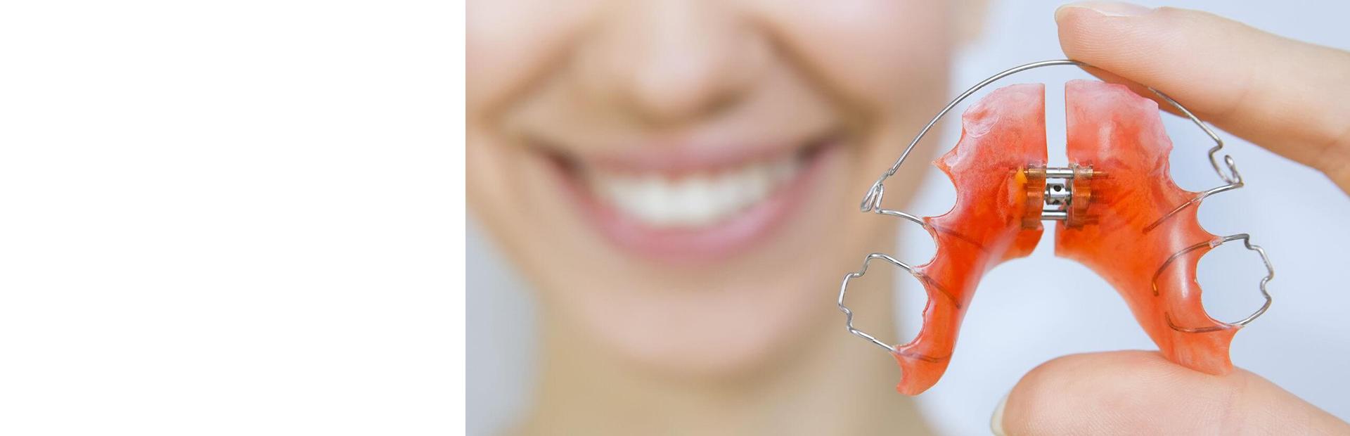 Пластинка ортодонтическая