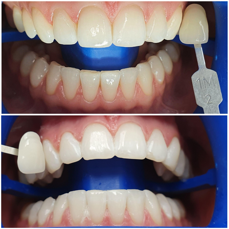 Отбеливание Zoom 4. Изначальный цвет зубов 1М2, полученный результат после ОМ3.