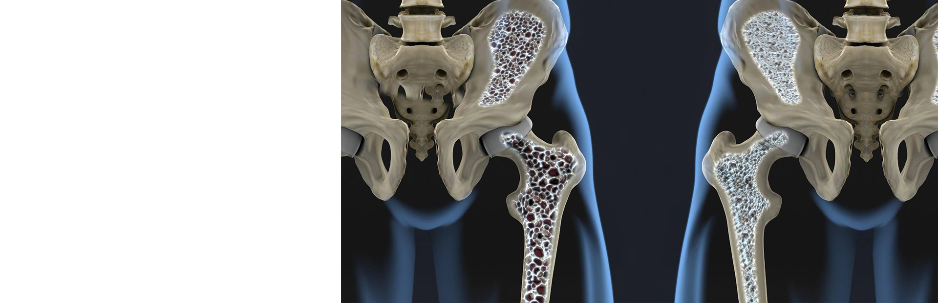Маркёры метаболизма костной ткани и остеопороза